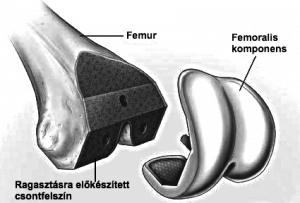 A lábszárcsonti rész (tibiális komponens) is milliméter pontos előkészítést igényel
