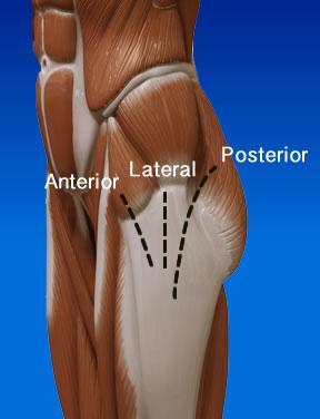 hip-anterior-posterior - Professzor Dr. Szabó István
