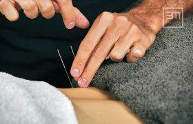 Akupunktúra, hagyományos kínai gyógyászat